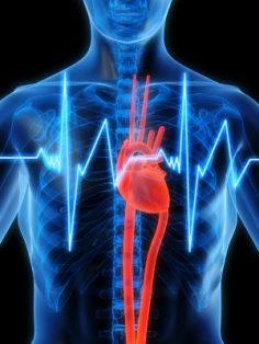 Heart Scan Institute New Delhi, New Delhi, India