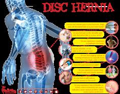 Infographics: Disc Hernia Surgery